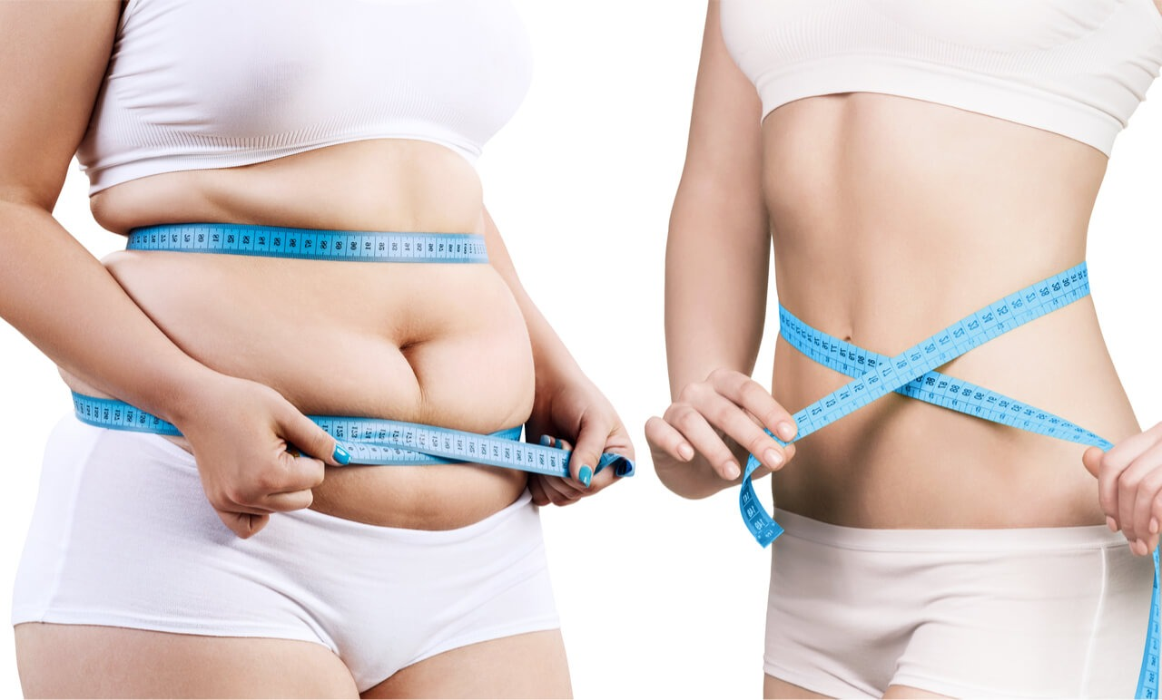 non surgical weight loss procedure