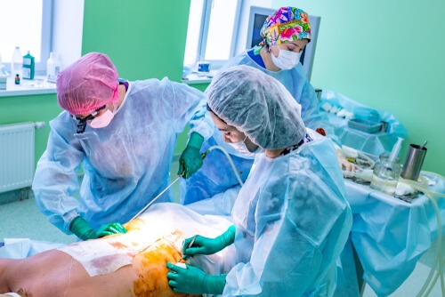 sculpting liposuction