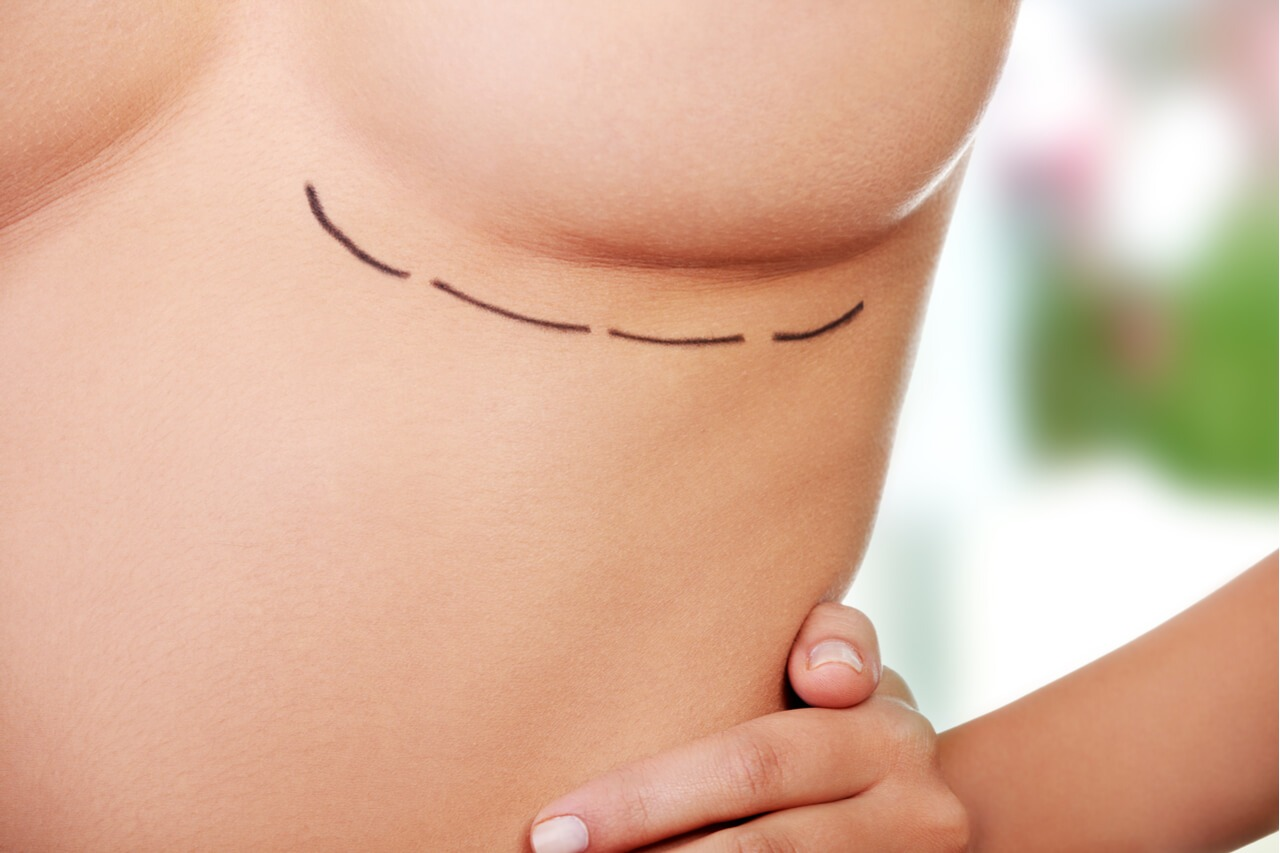 breast conserving surgery