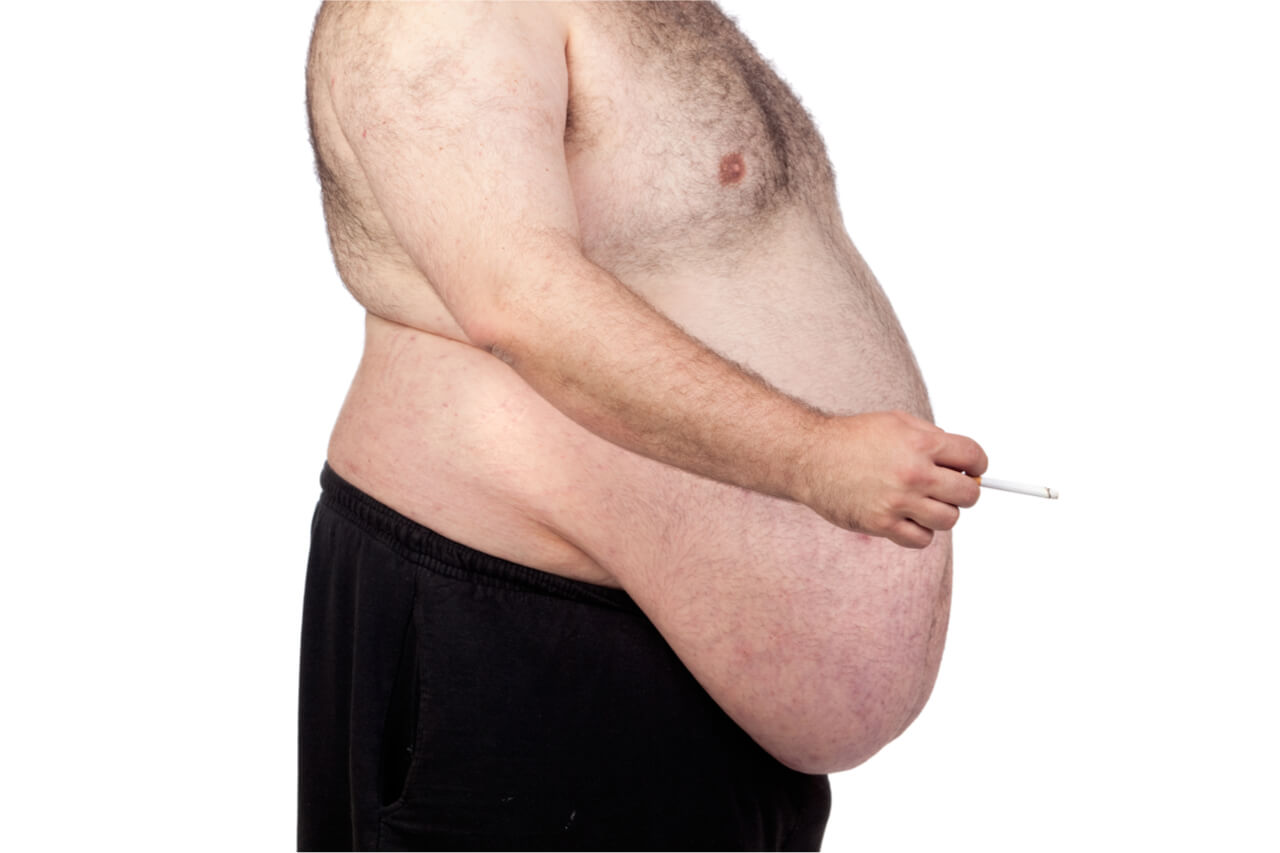 morbid obesity weight loss