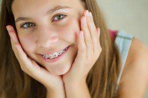braces for buck teeth