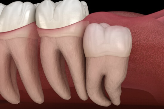 vertical impacted tooth