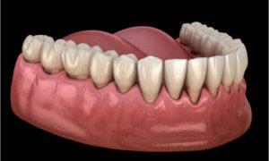 sample photo of gum recession