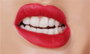 a lady with teeth grinding condition